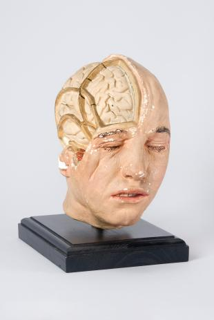 Model of the head of an adult male, brain exposed on the right-hand side