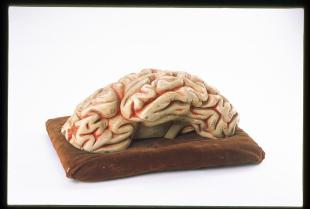model of the left cerebral hemisphere