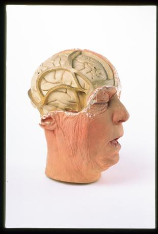 Model of the head of an older man, brain exposed on the right-hand side