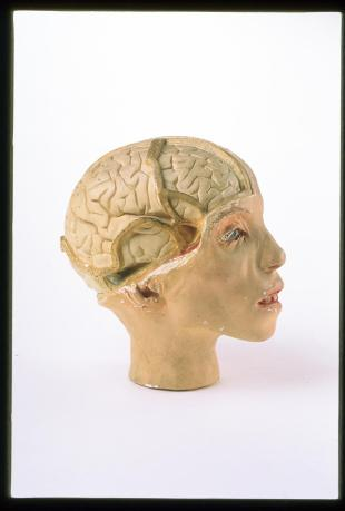 Model of the head of a young girl, brain exposed on the righthand side